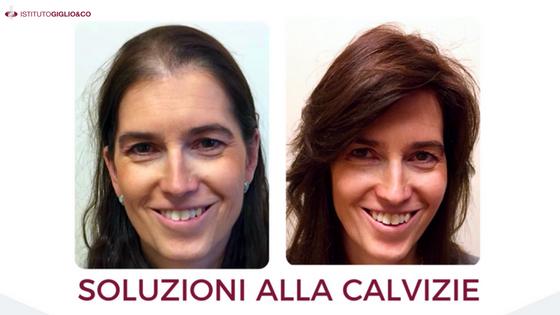 caduta_capelli_soluzioni_calvizie-2